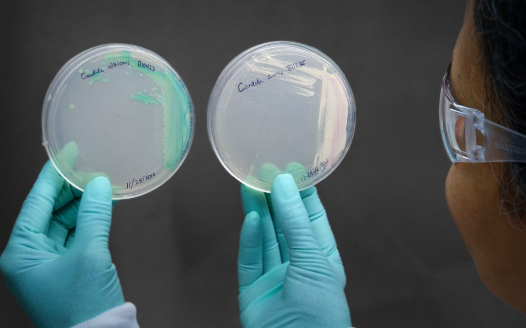 CDC reports transmission of drug-resistant Candida auris with threat level – urgent